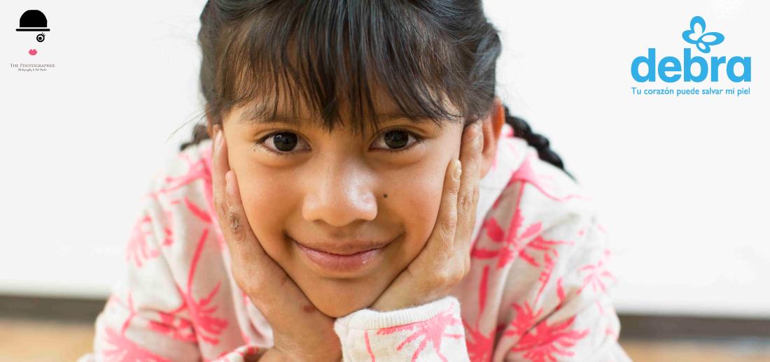 donaciones-en-especie-debra-colombia